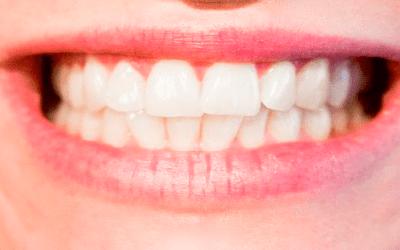 Starke weiße Zähne brauchen starke weiße Keramikfüllungen